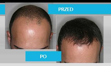 Jak leczyć łysienie?