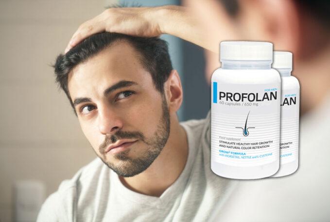 Co to jest Profolan? Jakie są przyczyny łysienia?