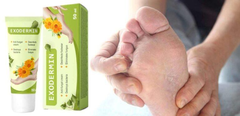 Grzybica skóry i paznokci: przyczyny i czynniki ryzyka