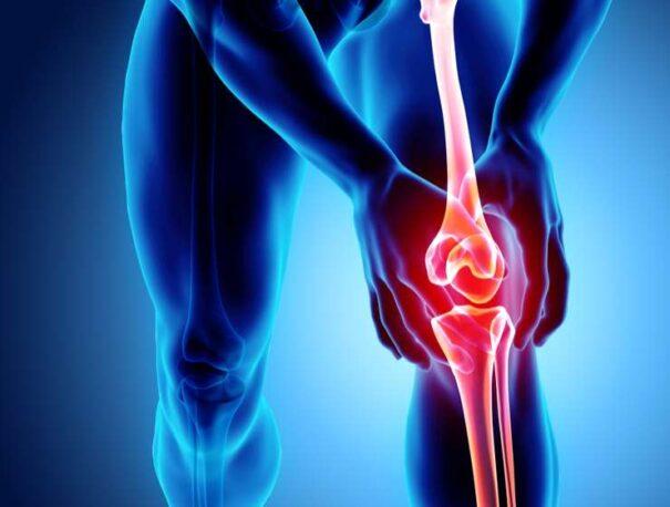 Jakie są objawy bólu kolan?